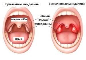 Симптомы гнойной ангины