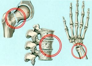 Места переломов при остеопорозе